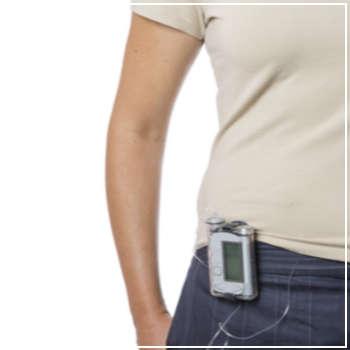 woman wearing an insulin pump
